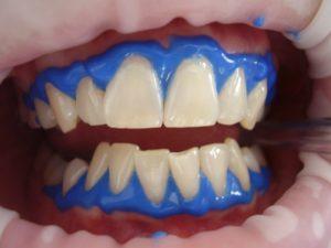wybielanie zębów bemowo