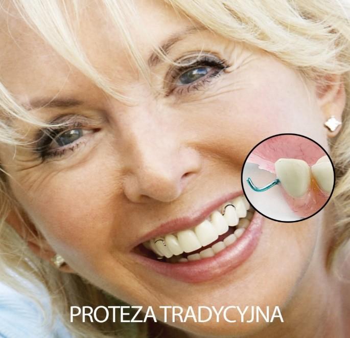 proteza tradycyjna
