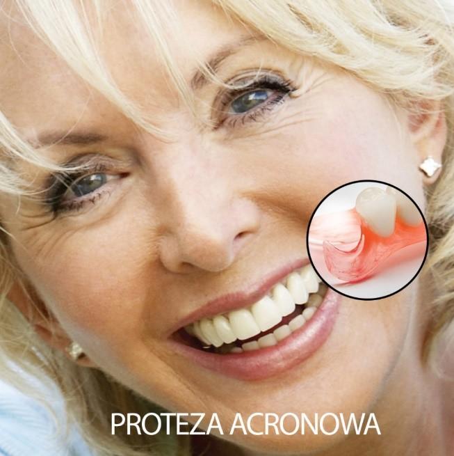 proteza acrynowa